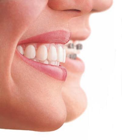 Ortodoncia Brackets - Carreras Dental - Terrassa