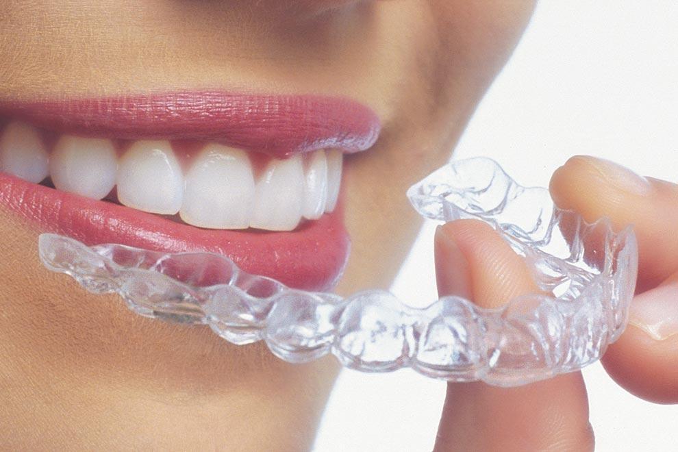 Ortodoncia Invisalign - Carreras Dental - Terrassa